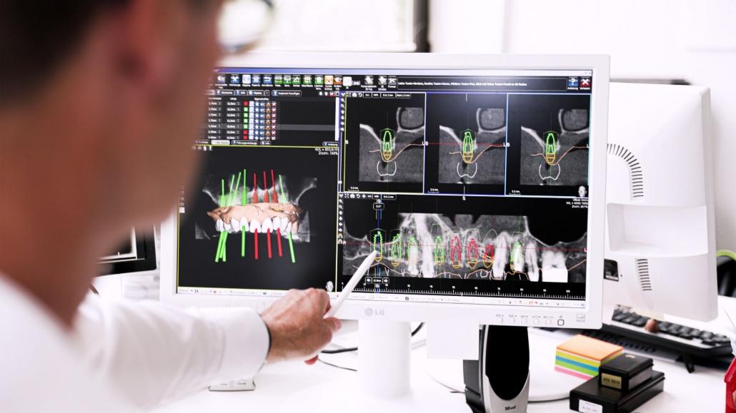 Implantate bei Ihrem City Zahnarzt in Hamm
